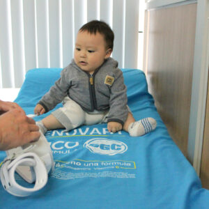 Displasia de cadera. Traumatólogo pediatra